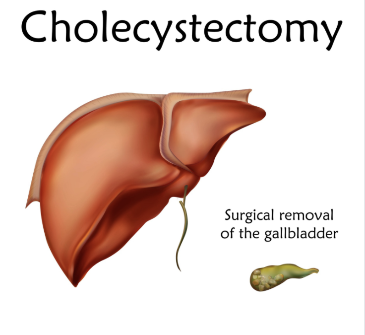 The Potential Impact of Cholecystectomy on Drug and Xenobiotic Metabolism, and Liver Detoxification