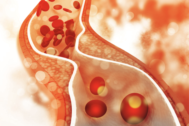 The Antioxidant Function of Cholesterol